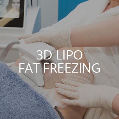 3D Fat Freeze Liverpool