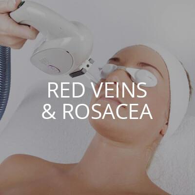 red veins rosacea