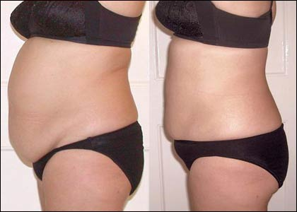 3D Lipo Cavitation Inch Loss Liverpool