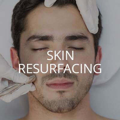 Microdermabrasion for Men