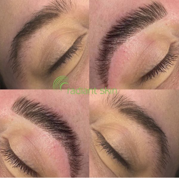 Brow Lamination at Radiant Skin Liverpool