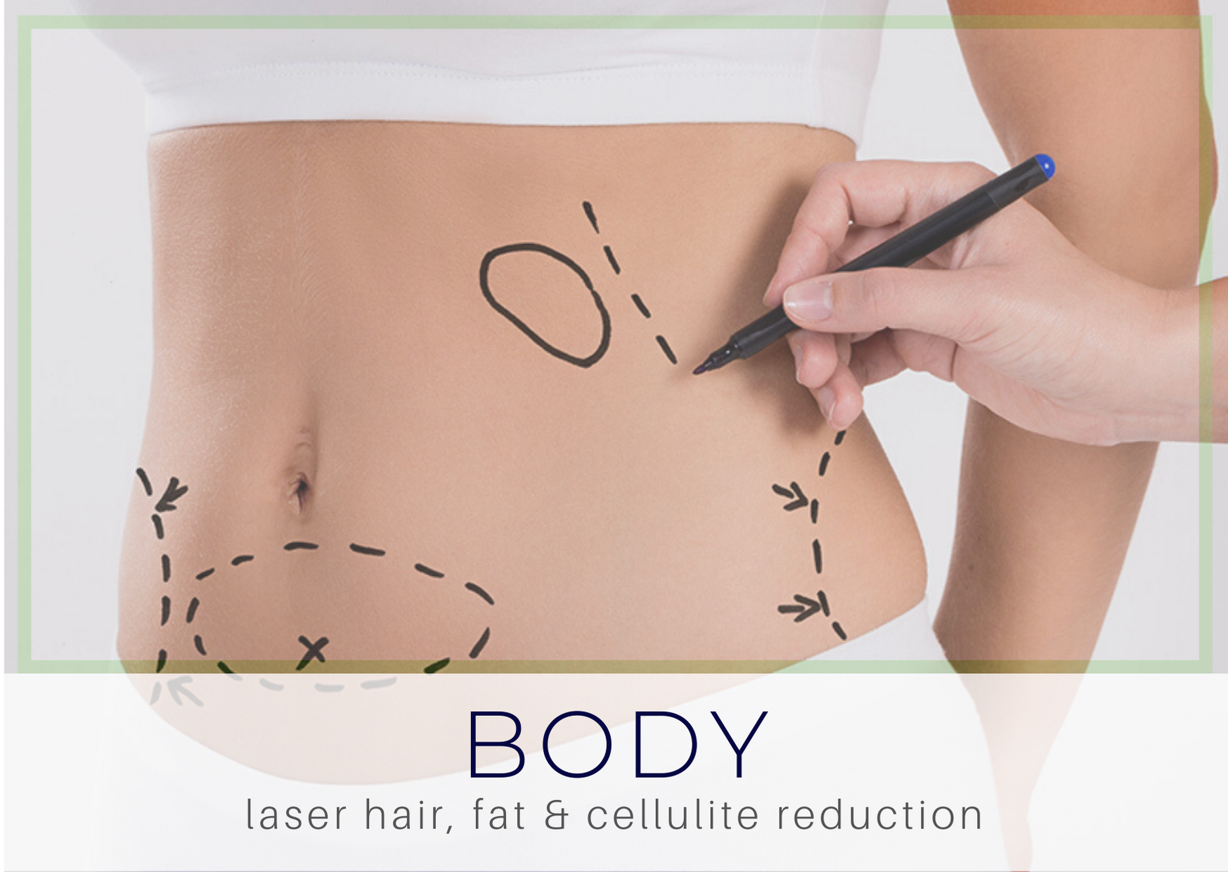 Laser hair removal at Radiant Skin Liverpool